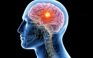 Đột phá: Xét nghiệm nước tiểu có thể phát hiện sớm khối u não